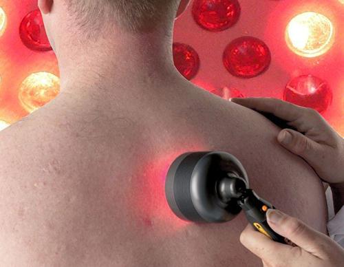 שימוש בלייזר נמוך עוצמה לטיפול בכאבים.